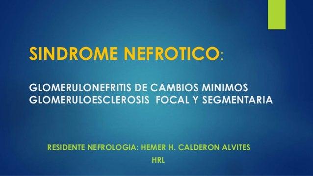 SINDROME NEFROTICO: GLOMERULONEFRITIS DE CAMBIOS MINIMOS GLOMERULOESCLEROSIS FOCAL Y SEGMENTARIA RESIDENTE NEFROLOGIA: HEM...