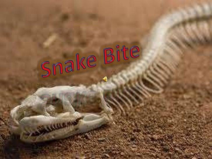 Snake Bite<br />
