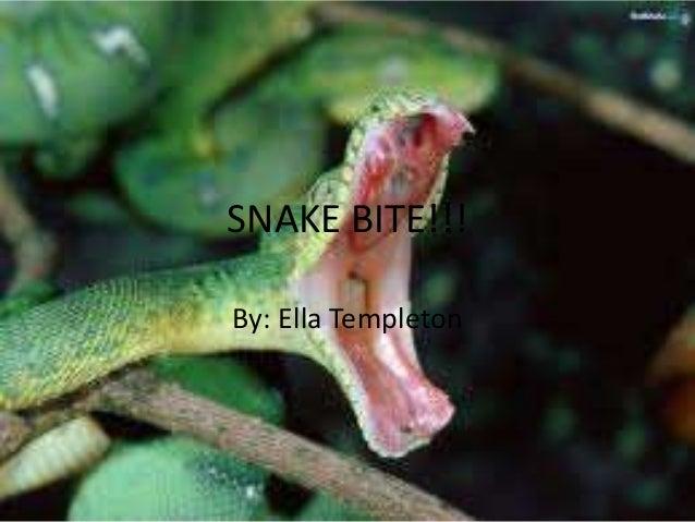 SNAKE BITE!!!By: Ella Templeton