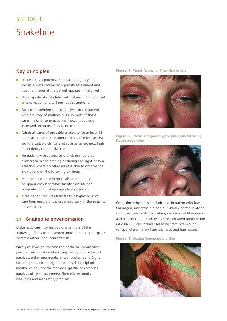 Snake Spider Guidelines Gl2007 006 3