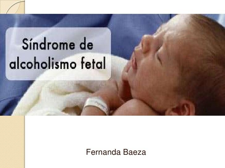 Síndrome Alcoholico Fetal (mejorado).[1]
