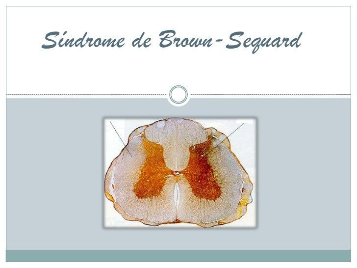 Síndrome de brown sequard o hemisección de la medula