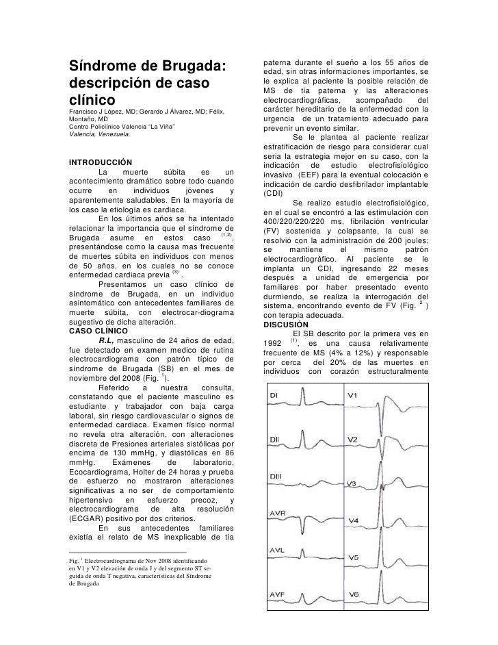 Síndrome de Brugada: descripción de caso clínico<br />Francisco J López, MD; Gerardo J Álvarez, MD; Montaño, MD<br />Centr...