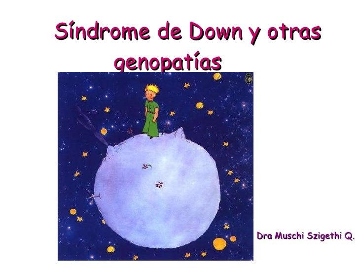 Síndrome de Down y otras  genopatías Dra Muschi Szigethi Q.