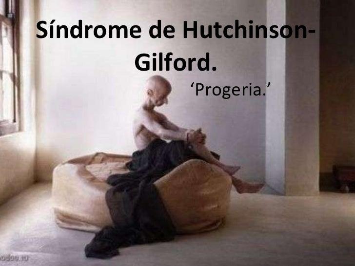 Síndrome de Hutchinson-Gilford. ' Progeria.'