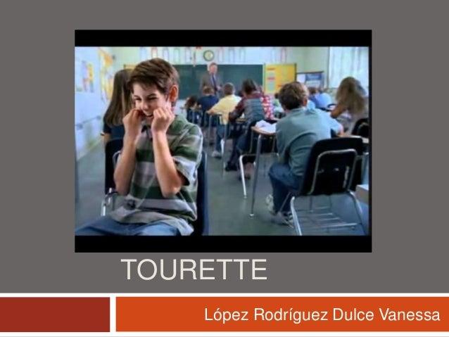 SÍNDROME DE TOURETTE López Rodríguez Dulce Vanessa