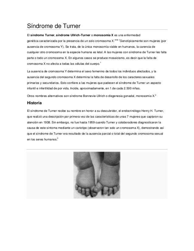 Síndrome de Turner El síndrome Turner, síndrome Ullrich-Turner o monosomía X es una enfermedad genética caracterizada por ...
