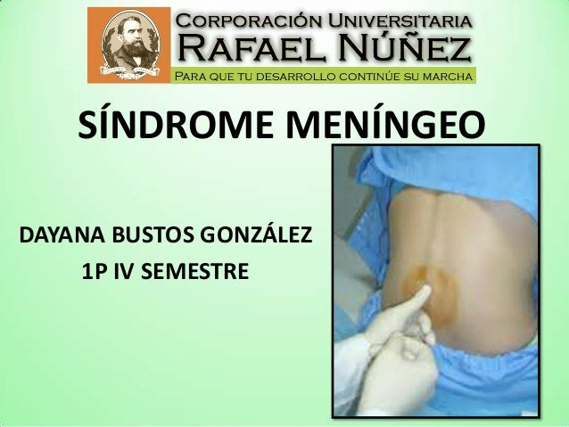 Síndrome meníngeo