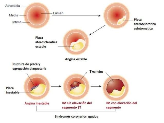 El aumento del pecho a principios del embarazo
