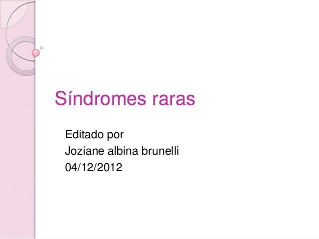 Síndromes raras Editado por Joziane albina brunelli 04/12/2012