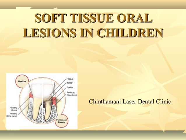 SOFT TISSUE ORAL LESIONS IN CHILDREN  Chinthamani Laser Dental Clinic