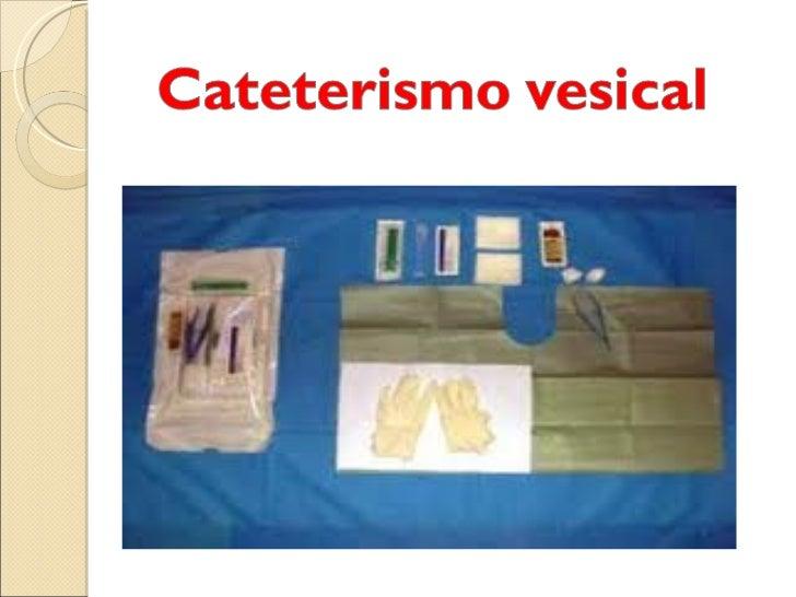 El cateterismo o sondaje vesical es una técnica queconsiste en la introducción de una sonda por lauretra hasta la vejiga u...