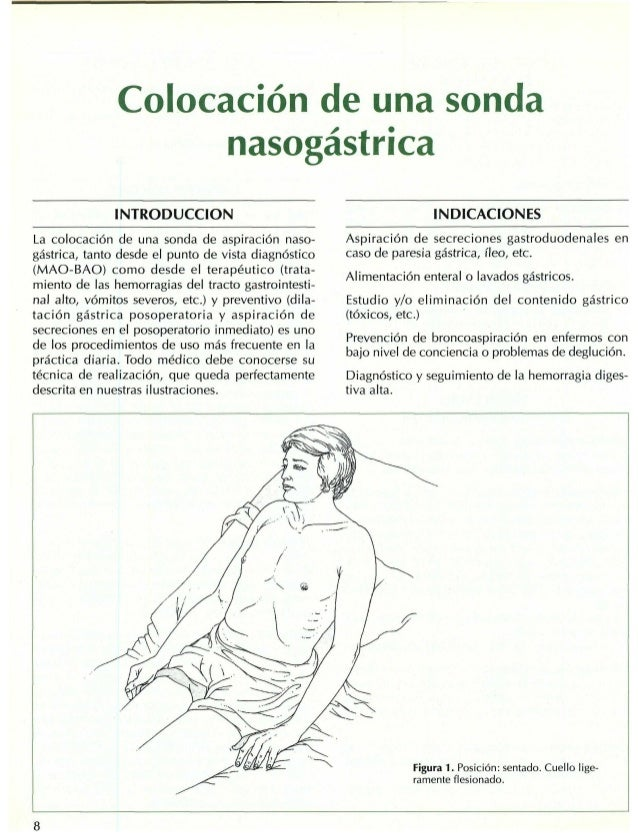 INTRODUCCION La colocación de una sonda de aspiración naso- gástrica, tanto desde el punto de vista diagnóstico (MAO-BAO) ...