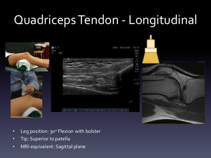 Quadriceps Tendon Ultrasound Quadriceps Tendon