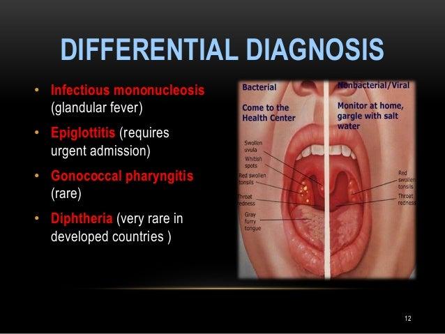 an analysis of the mononucleosis disease Powerpoint about mononucleosis also known as mono or the kissing disease.