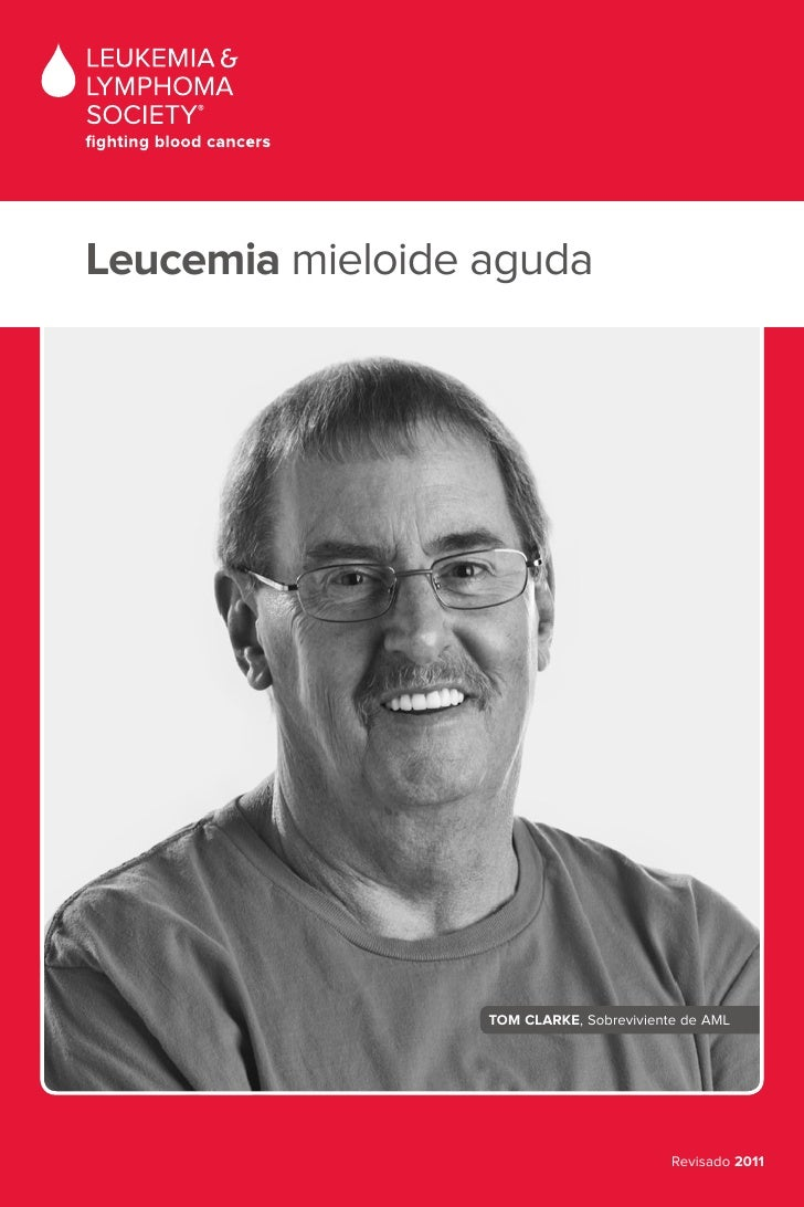 Leucemia mieloide aguda                      TOM CLARKE, Sobreviviente de AML                                             ...