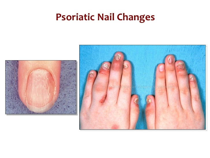 nail pitting psoriasis pictures