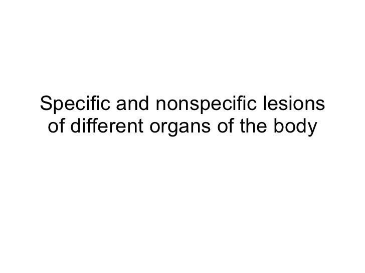 Specific and nonspecific lesions of different organs of the body