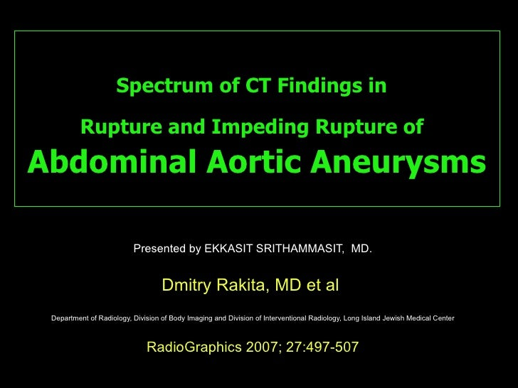 Spectrum of CT Findings in   Rupture and Impeding Rupture of   Abdominal Aortic Aneurysms Presented by EKKASIT SRITHAMMASI...