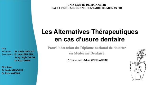 Les Alternatives Thérapeutiques  en cas d'usure dentaire  Pour l'obtention du Diplôme national de docteur  en Médecine Den...