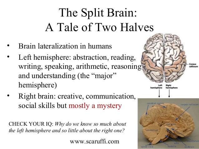 roger sperry Mucho de lo que conocemos acerca de las funciones cerebrales se lo debemos a roger sperry,.