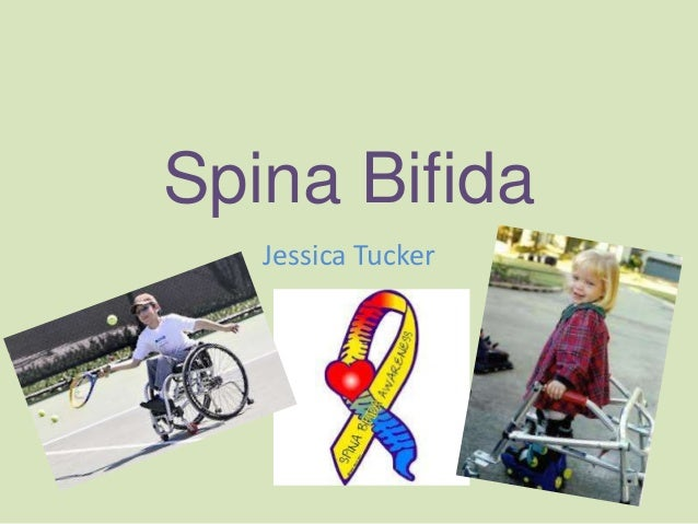 Spina bifida jessica tucker