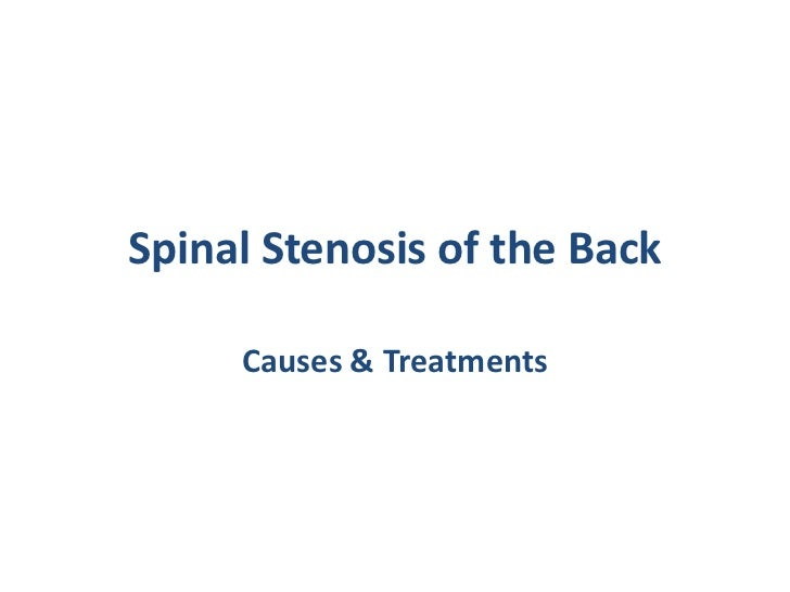 Spinal Stenosis of the Back