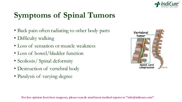 Spinal Stabilization Surgery >> Spinal tumor removal surgery by best surgeons of world in india