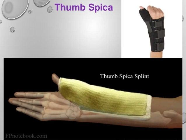 Splint Ppt By Rupeshkumar