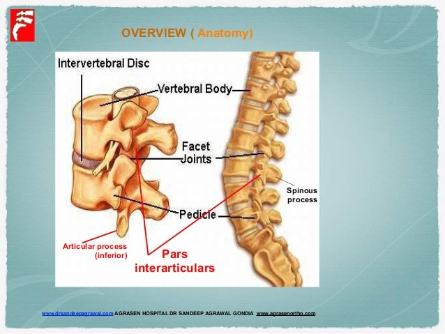rotatory subluxation or lateral listhesis Search results for what is lateral rotatory listhesis.