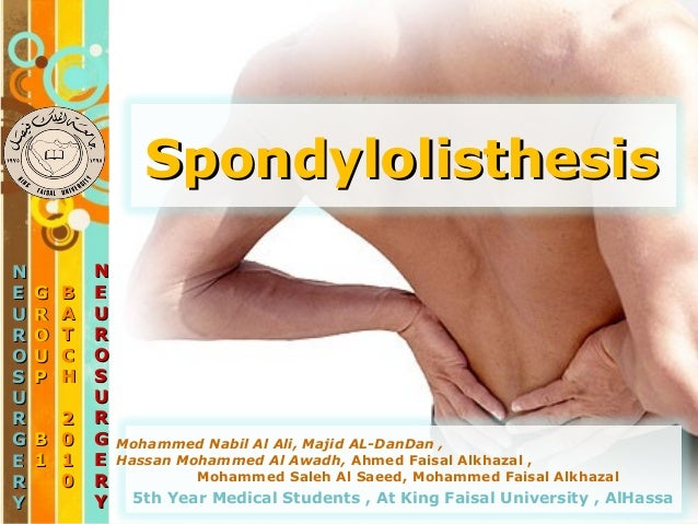 spondylolysis or listhesis Spondylolysis refers to a defect in a specific part of the facet joint called the pars interarticularis this defect can cause instability in the vertebra, much like a loose hinge in a door spondylolisthesis is an anterior or posterior slipping or displacement of one vertebra or another description a unilateral or bilateral defect of the.