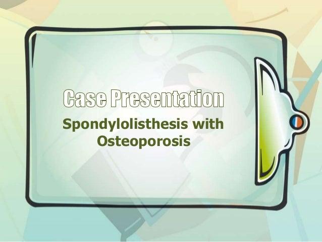 Spondylolisthesis with gross osteoporosis
