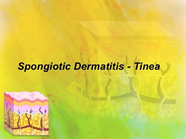 Spongiotic Dermatitis - Tinea