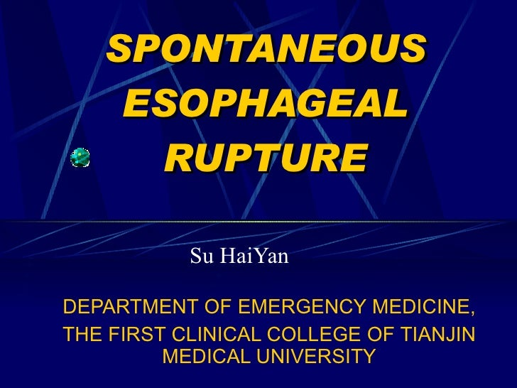SPONTANEOUS ESOPHAGEAL RUPTURE Su HaiYan DEPARTMENT OF EMERGENCY MEDICINE, THE FIRST CLINICAL COLLEGE OF TIANJIN MEDICAL U...