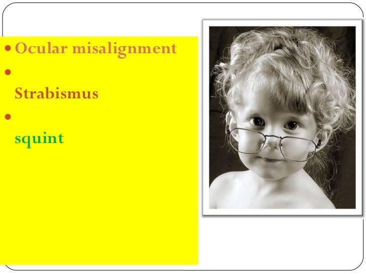<ul><li>Ocular misalignment </li></ul><ul><li>Strabismus </li></ul><ul><li>squint </li></ul>