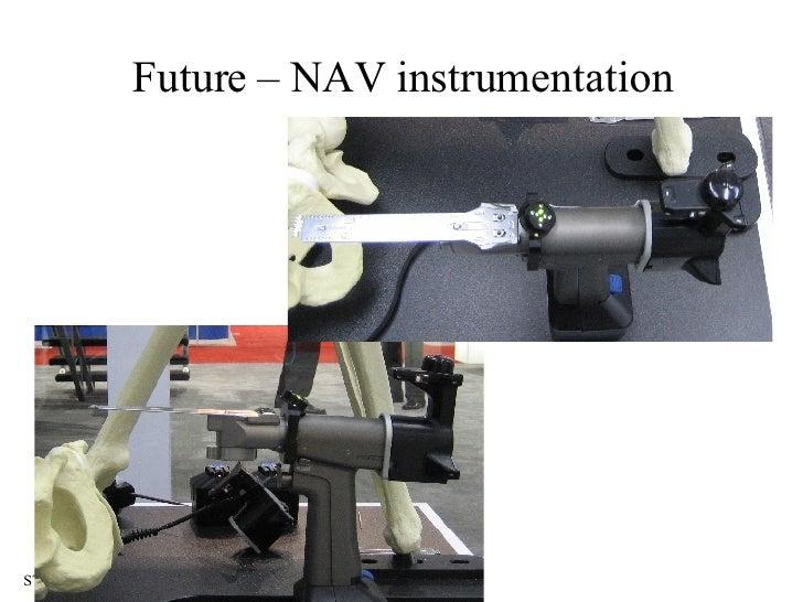 Future – NAV instrumentation