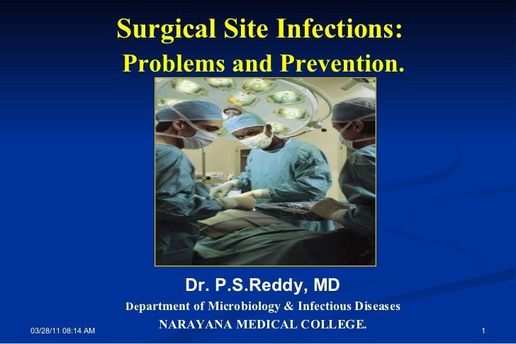 Ssi ;problems&prevention