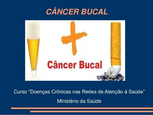 """CÂNCER BUCAL  Curso """"Doenças Crônicas nas Redes de Atenção à Saúde""""  Ministério da Saúde"""