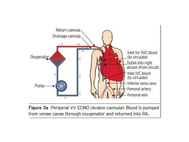 What is ecmo used for in adults