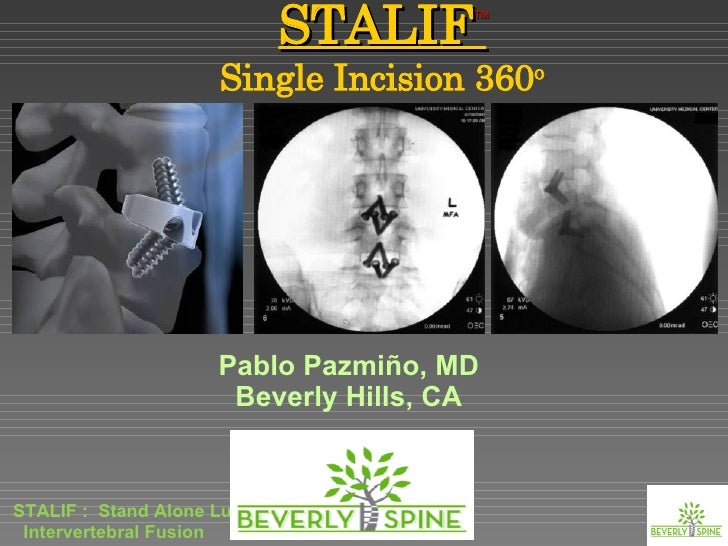 Lumbar Fusion : A New Anterior Only Option. The STALIF