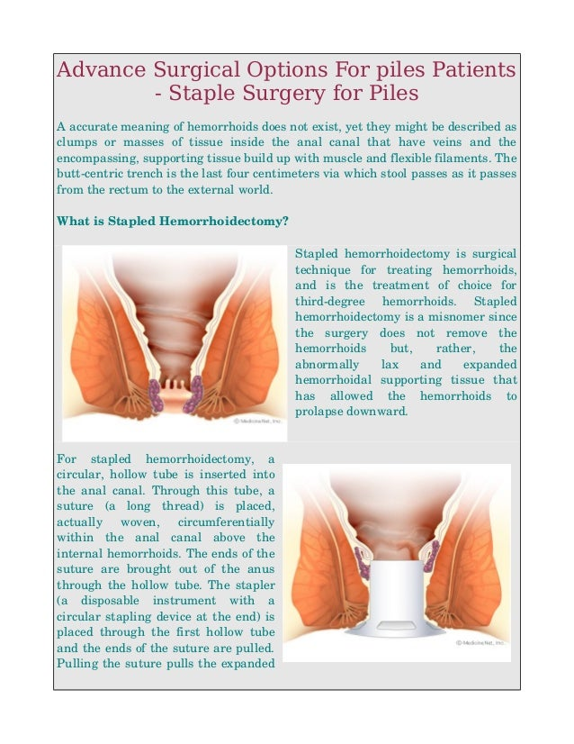 anus surgery options