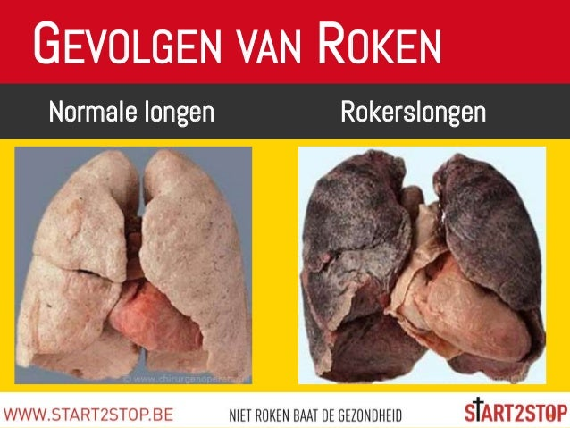 Gevolgen Van Roken Gevolgen Van Roken Longen