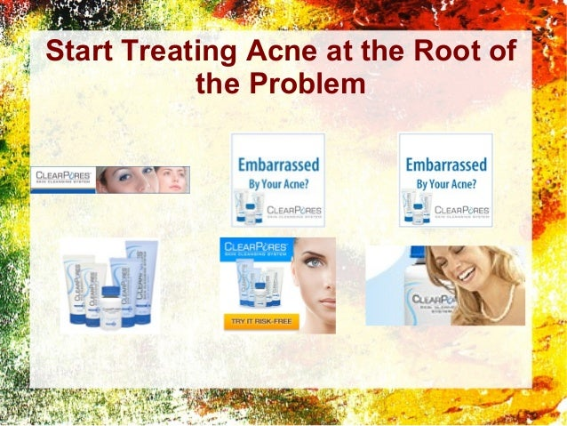 Start Treating Acne at the Root of the Problem