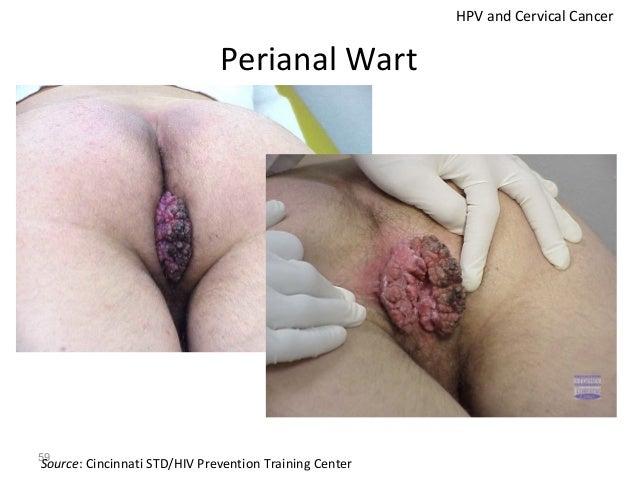 60 HPV Warts on the Thigh Venereal Disease Warts