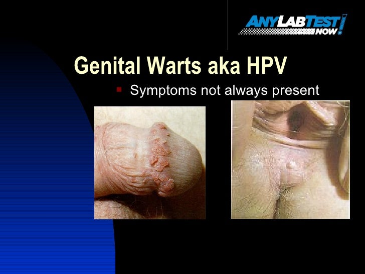 Genital Herpes Symptoms in Men - STDcheck.com