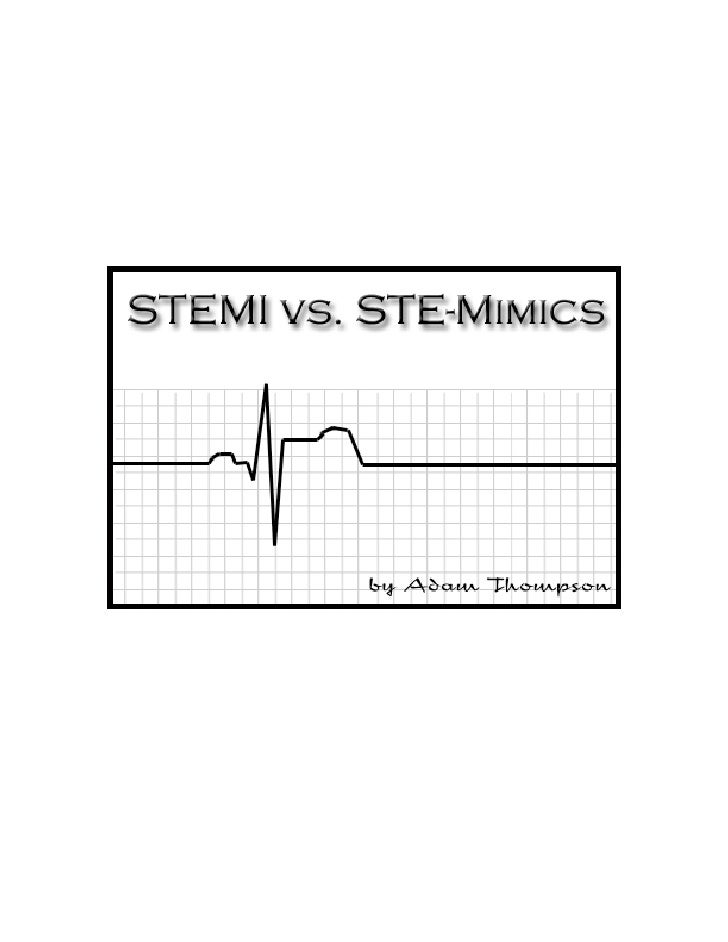 The Six-Step Method for 12-Lead ECG Interpretation  It goes like this:   1.) Rate and rhythm 2.) Axis determination 3.) QR...