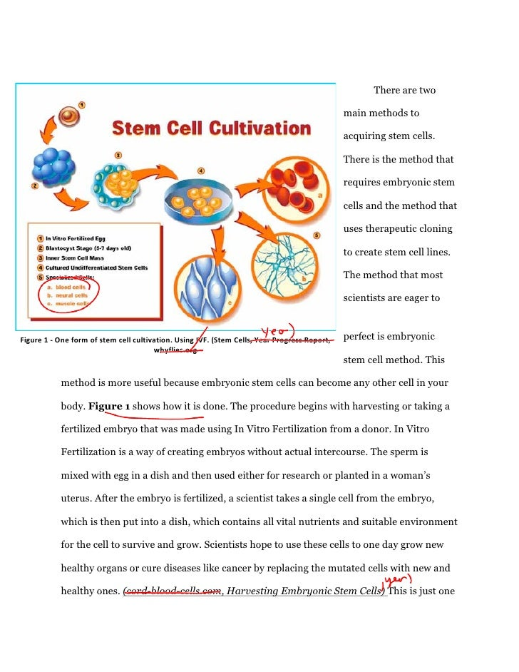 Stem cell research argumentative essay