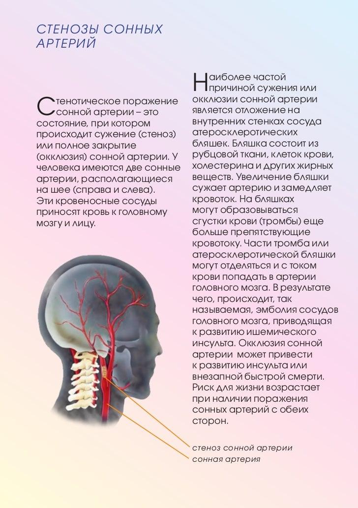 Хроническая окклюзия мезентериальных сосудов (