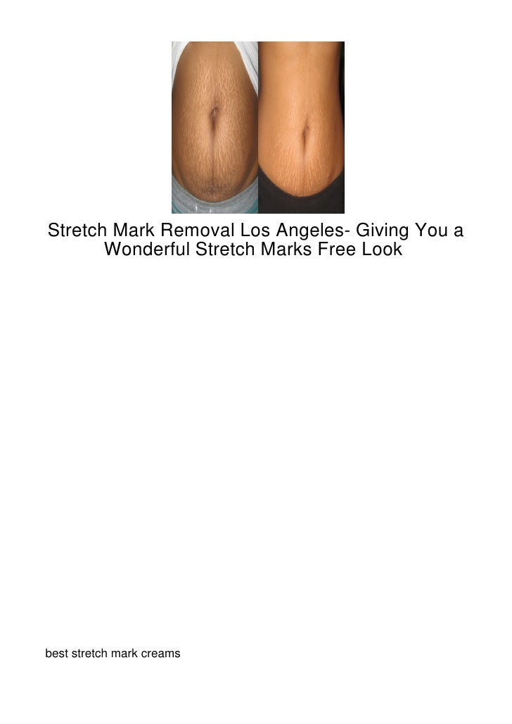 Stretch-Mark-Removal-Los-Angeles--Giving-You-A-Won164