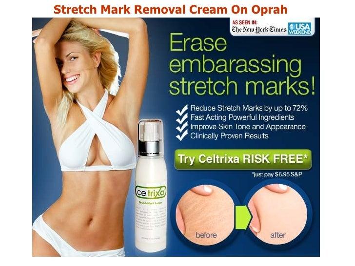 Stretch Mark Cream Stretch Mark Removal Cream on